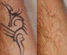 rimozione-tatuaggi-bologna