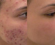 acne-laser-bologna
